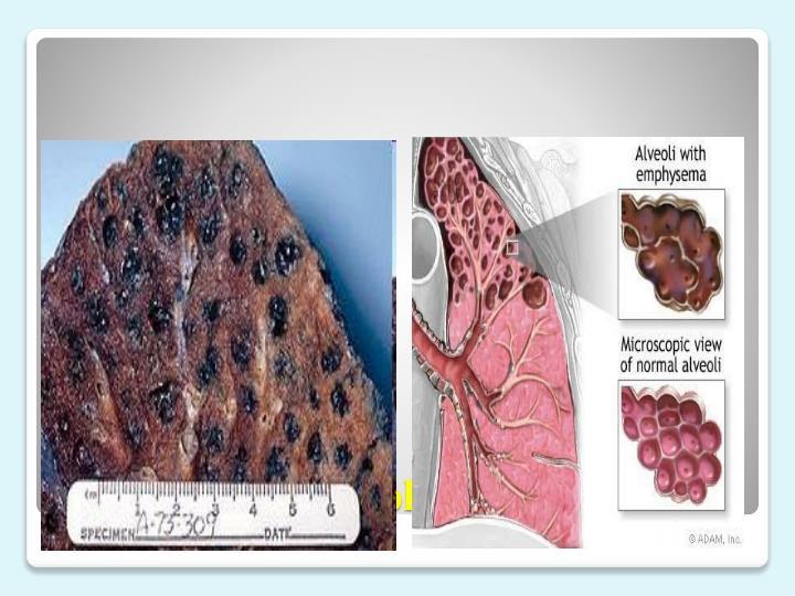 Centrilobular emphysema