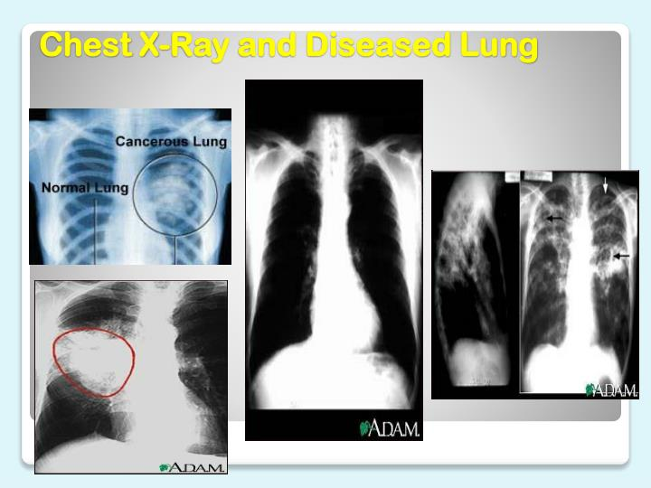 Chest X-Ray and Diseased Lung