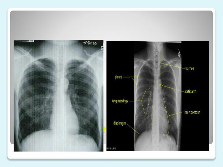 Normal Chest X-Ray and Lung