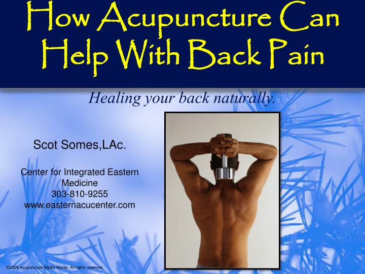 how acupuncture can help with back pain n.