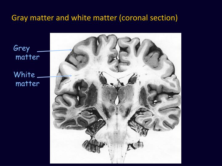 Gray matter and white matter (coronal section)