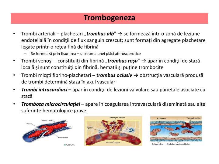 Trombogeneza