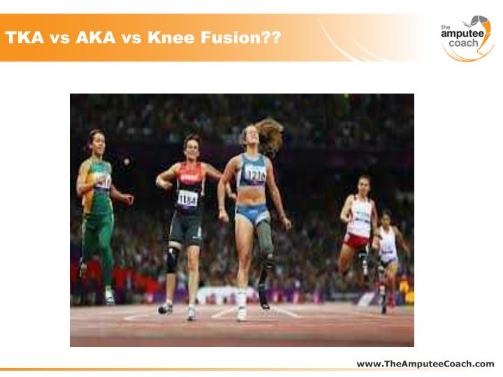 TKA vs AKA vs Knee Fusion??