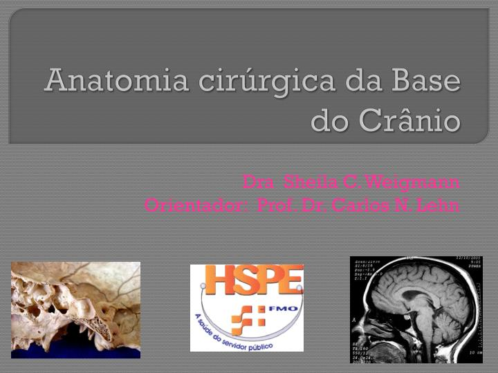 PPT - Anatomia cirúrgica da Base do Crânio PowerPoint Presentation ...