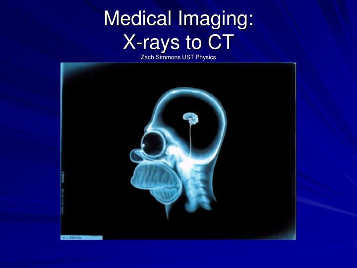 medical imaging x rays to ct zach simmons ust physics n.
