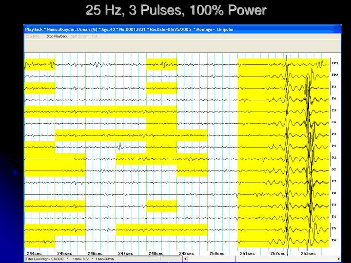25 Hz, 3 Pulses, 100% Power