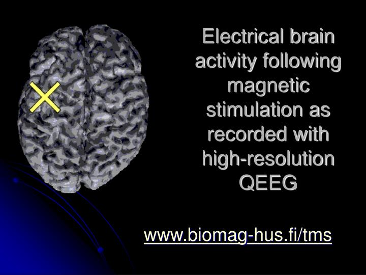 Electrical brain activity following magnetic stimulation as recorded with high resolution q eeg