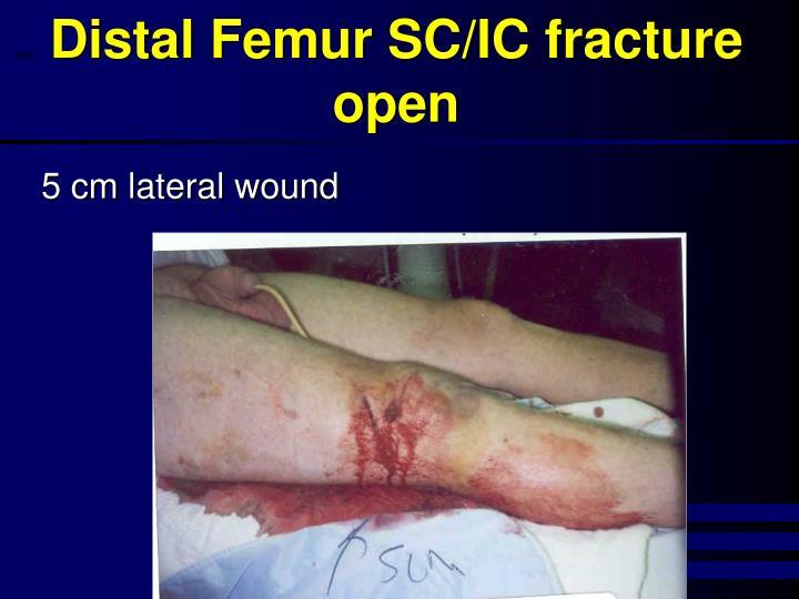 Distal Femur SC/IC fracture open