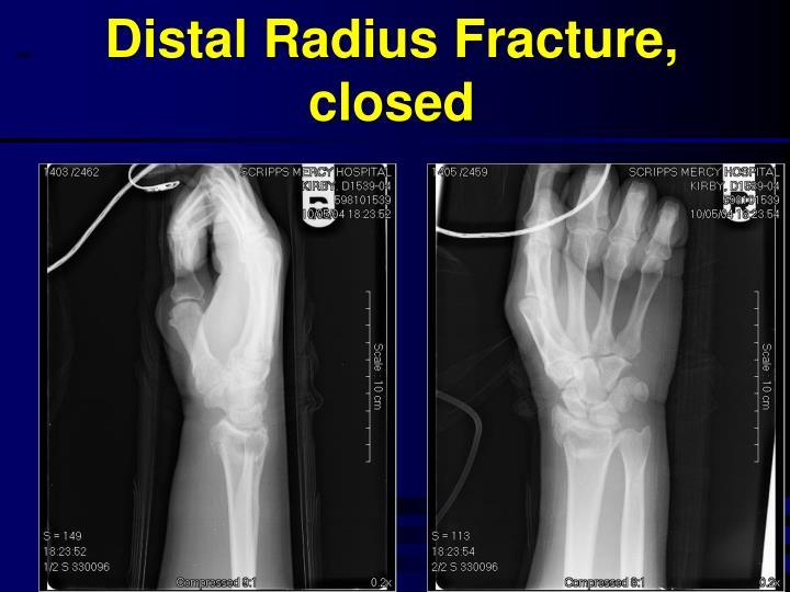 Distal Radius Fracture, closed