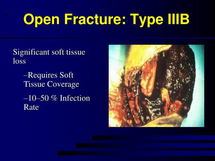 Open Fracture: Type IIIB