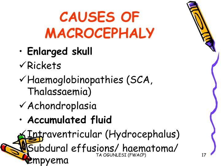 CAUSES OF MACROCEPHALY