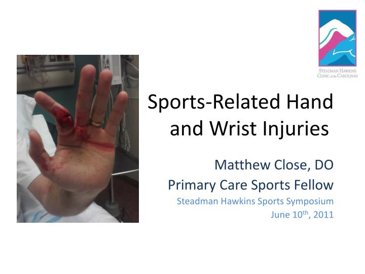 sports related hand and wrist injuries n.