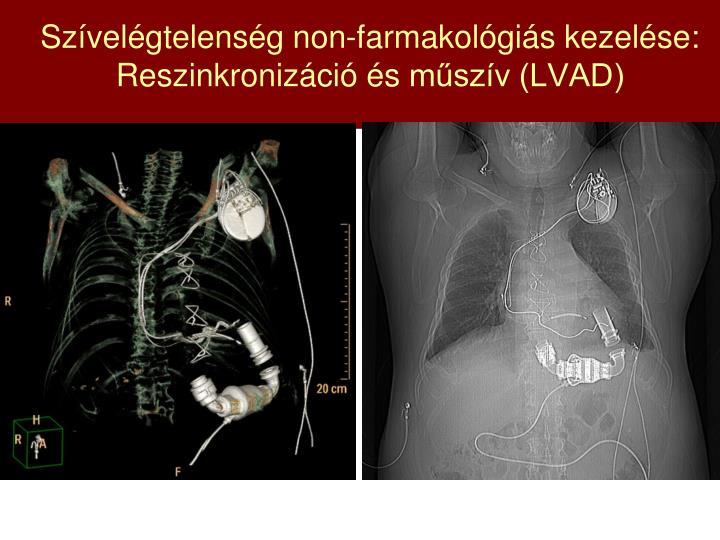 Szívelégtelenség non-farmakológiás kezelése: Reszinkronizáció