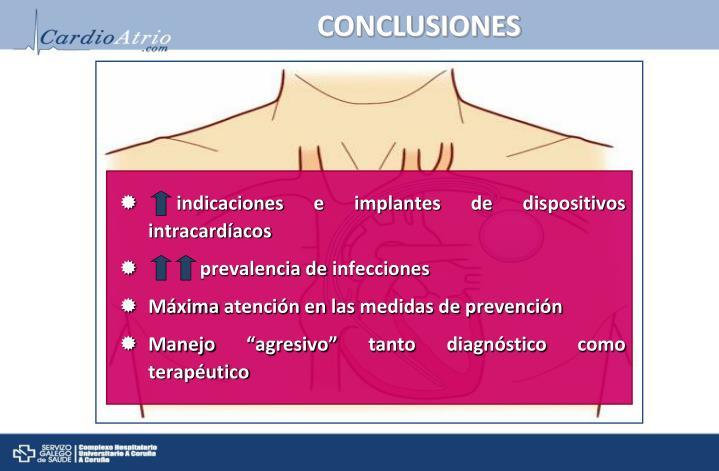 indicaciones e implantes de dispositivos intracardíacos