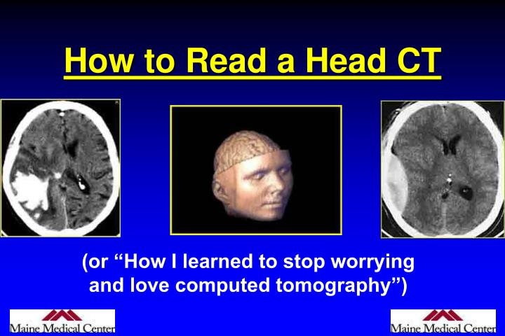 how to read a head ct n.