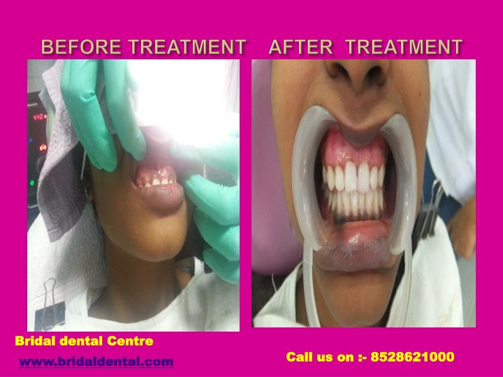 BEFORE TREATMENT    AFTER  TREATMENT