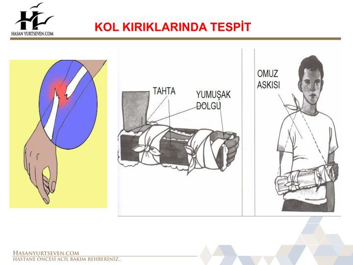 KOL KIRIKLARINDA TESPİT