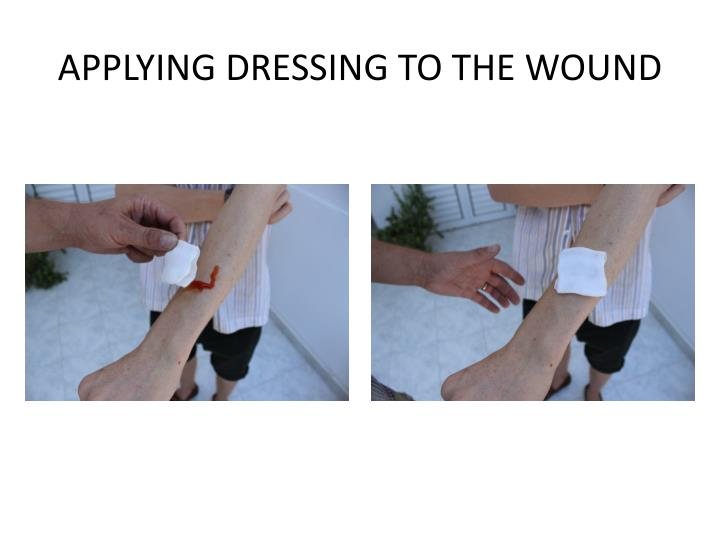 APPLYING DRESSING TO THE WOUND