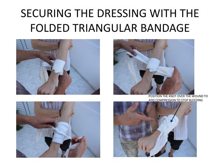 SECURING THE DRESSING WITH THE FOLDED TRIANGULAR BANDAGE