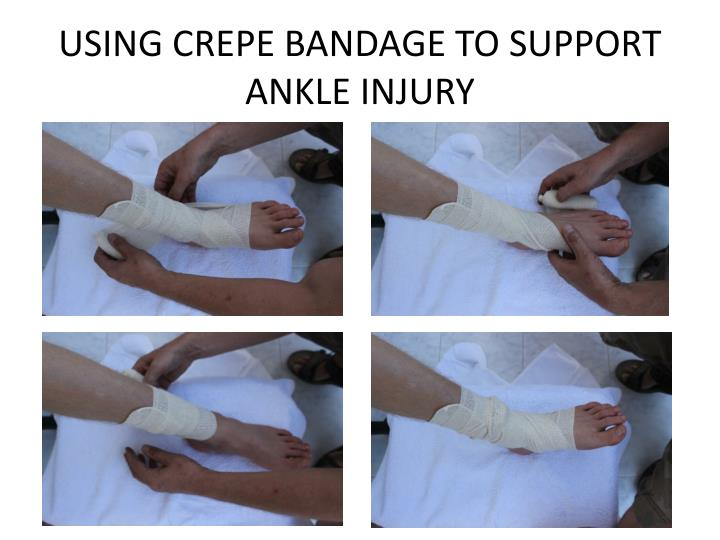 USING CREPE BANDAGE TO SUPPORT ANKLE INJURY