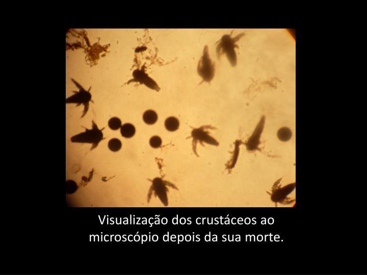 Visualização dos crustáceos ao microscópio depois da sua morte.