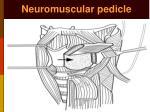 neuromuscular pedicle2