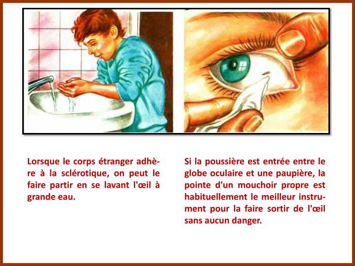 Lorsque le corps étranger adhè-re à la sclérotique, on peut le faire partir en se lavant l'œil à grande eau.