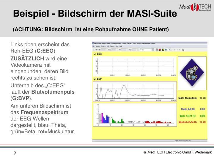 Beispiel - Bildschirm der MASI-Suite