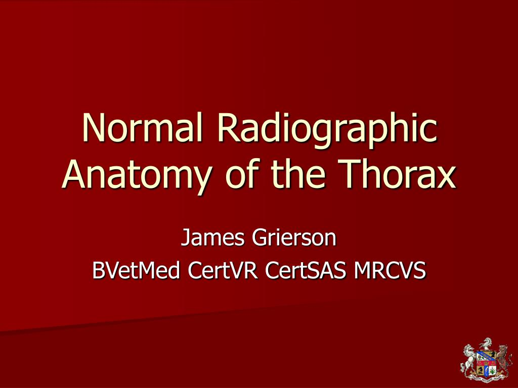Ppt Normal Radiographic Anatomy Of The Thorax Powerpoint
