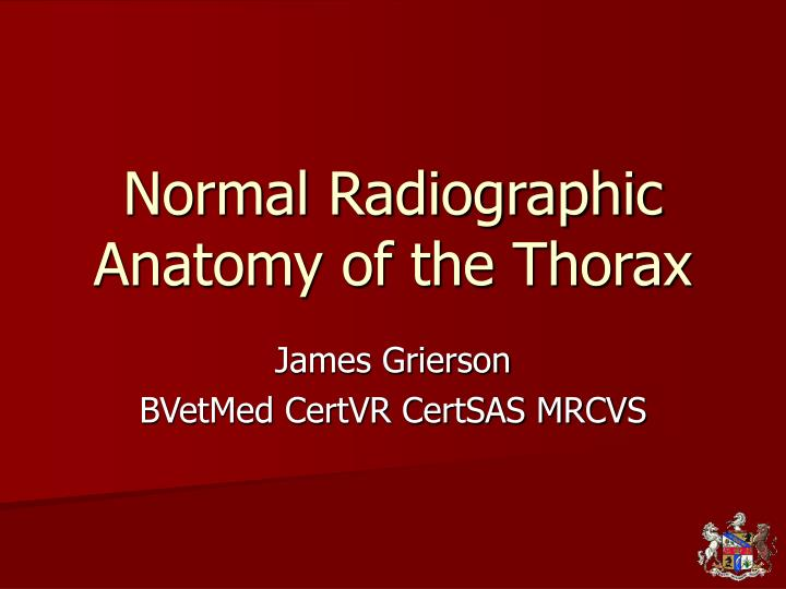 PPT - Normal Radiographic Anatomy of the Thorax PowerPoint ...