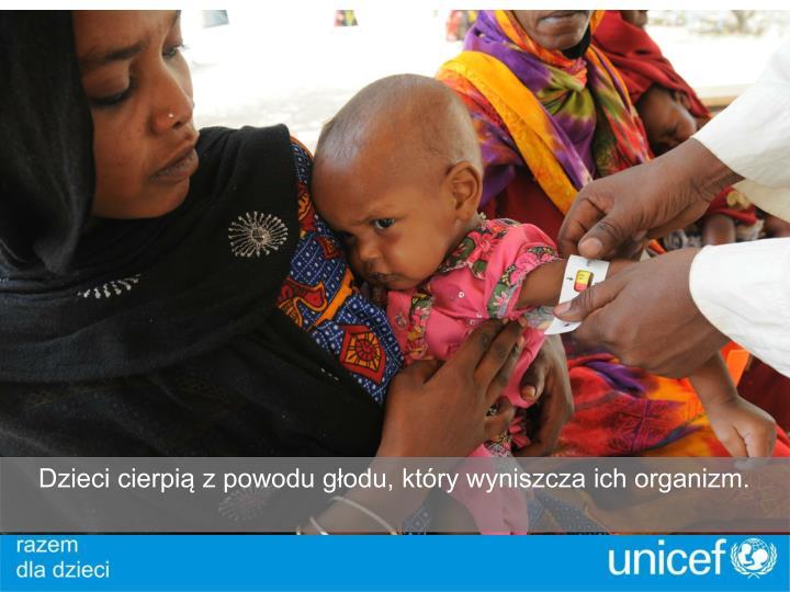 Dzieci cierpią z powodu głodu, który wyniszcza ich organizm.