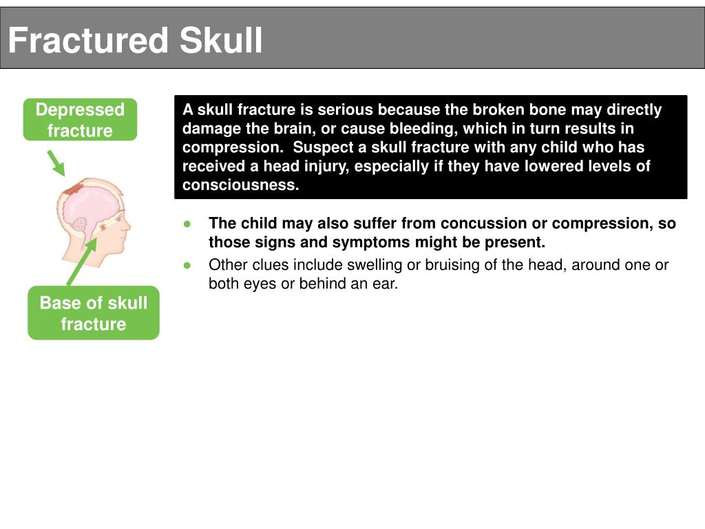 PPT - SERIOUS HEAD INJURIES PowerPoint Presentation - ID:4923183