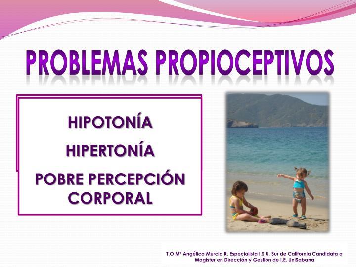 HIPOTONÍA