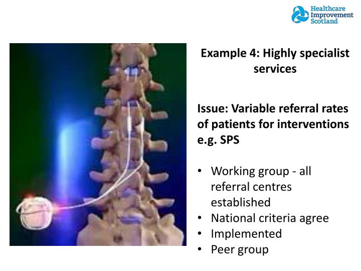 Example 4: Highly specialist services