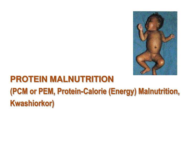 PROTEIN MALNUTRITION