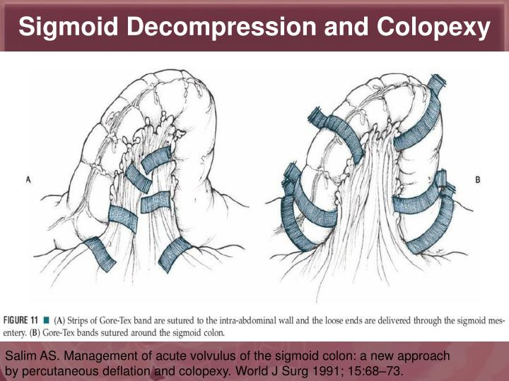 Sigmoid Decompression and Colopexy