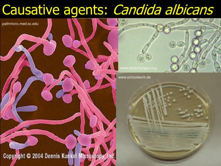 Causative agents: