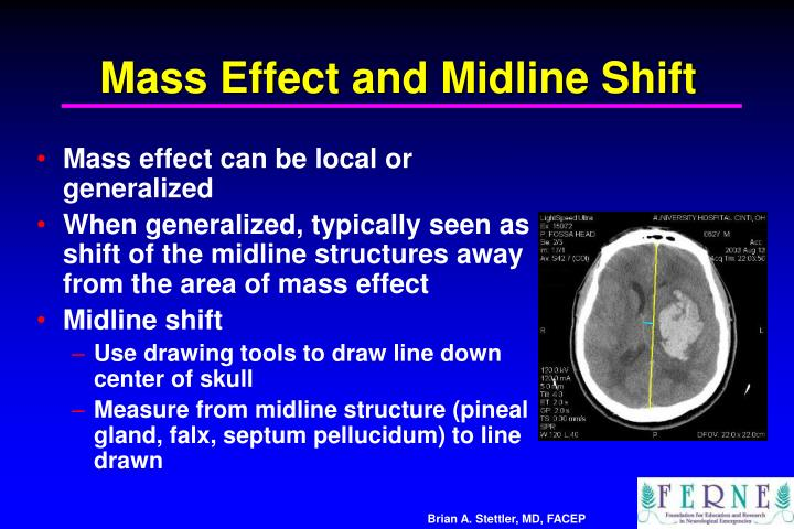 Mass Effect and Midline Shift