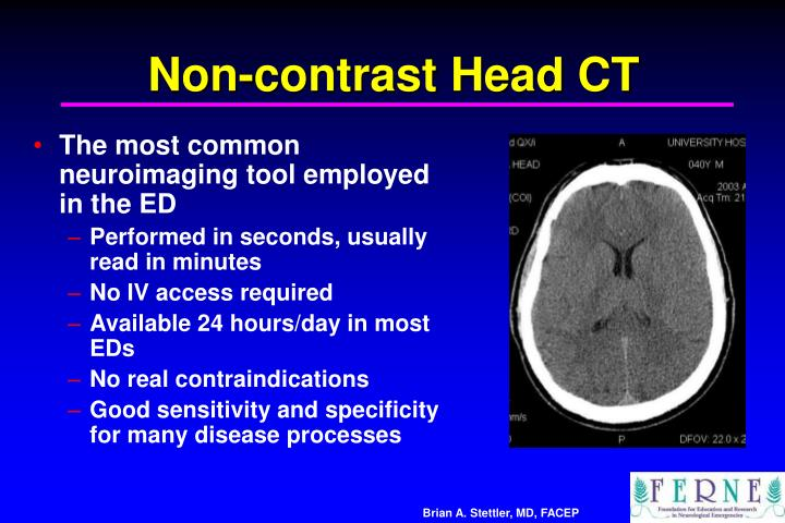 Non-contrast Head CT