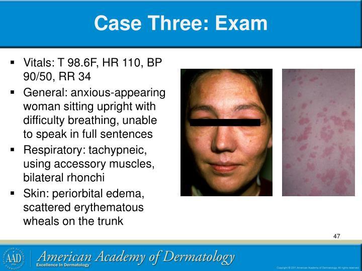 Case Three: Exam