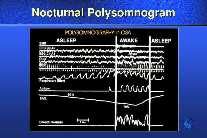 Nocturnal Polysomnogram