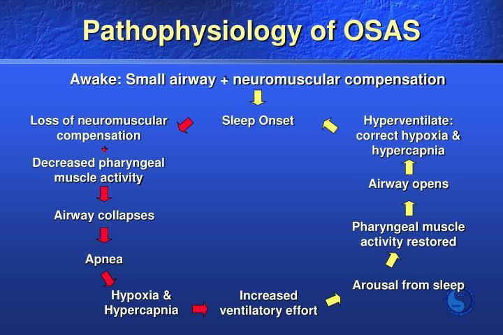 Awake: Small airway + neuromuscular compensation