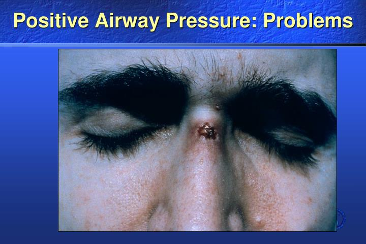 Positive Airway Pressure: Problems