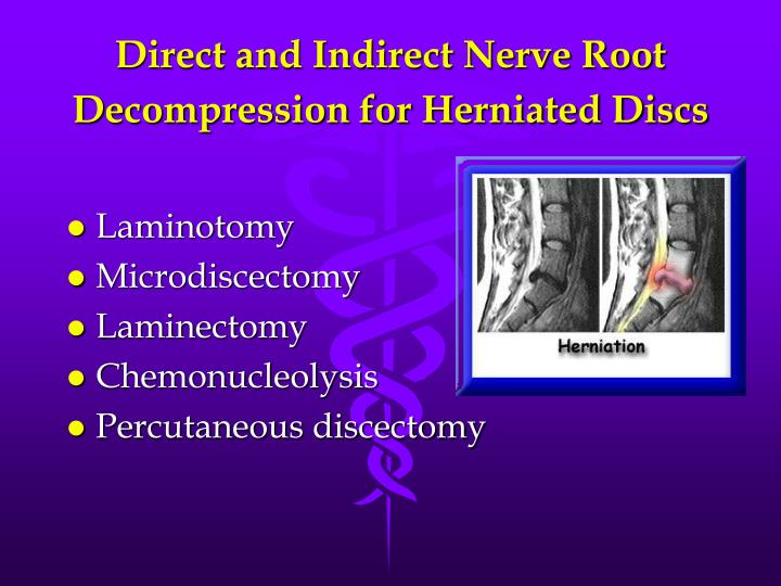 Direct and Indirect Nerve Root Decompression for Herniated Discs