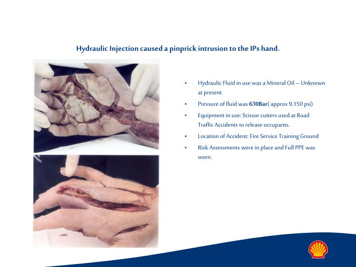 Hydraulic injection caused a pinprick intrusion to the ips hand
