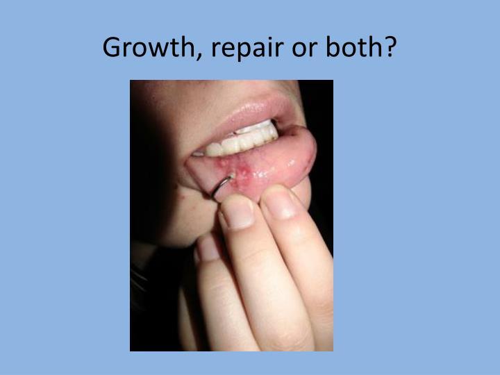 Growth, repair or both?