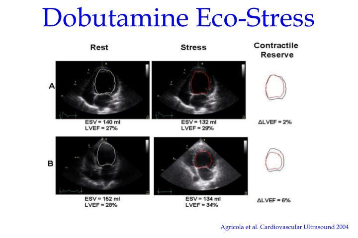 Dobutamine Eco-Stress Test