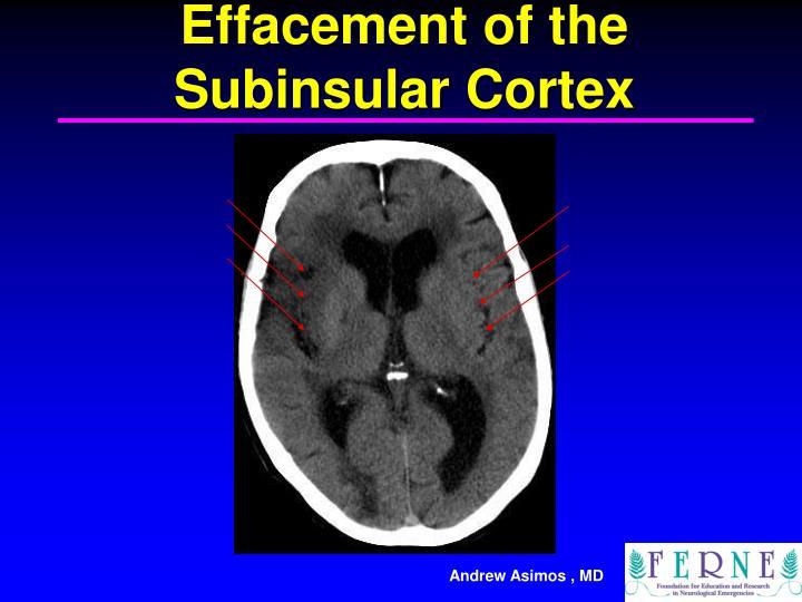Effacement of the Subinsular Cortex