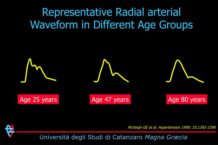 Representative Radial arterial Waveform in Different Age Groups