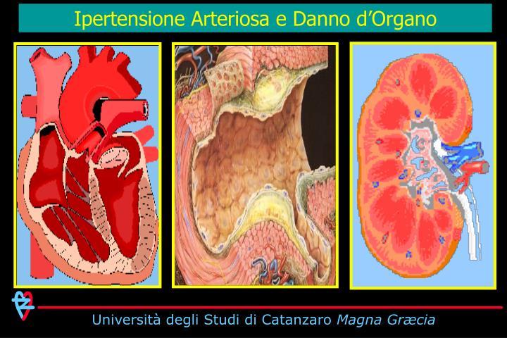 Ipertensione Arteriosa e Danno d'Organo